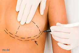 Breast Reconstruction plastic surgery marking