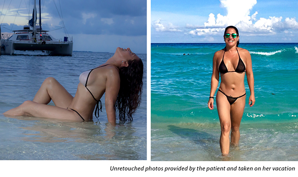 Unretouched photos provided by Dr Iteld's breast reconstruction patient and taken on her vacation. What better testimonials can you ask for than a truly satified patient?!